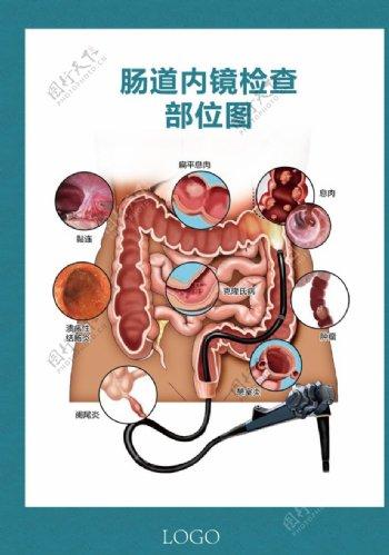 肠道内镜检查部位图图片